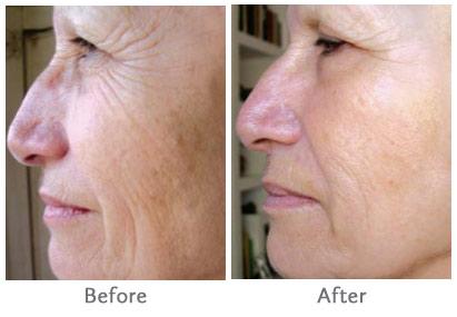 CBD Oil for wrinkles, Skin